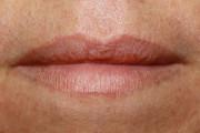 Женщина случайно склеила губы, перепутав клей с бальзамом